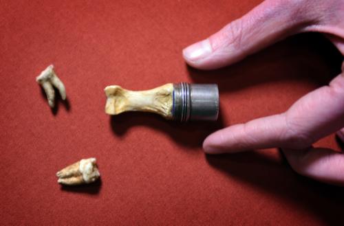 King-john-teeth-worcester-museum-thumb-bone-cathedral-magna-carta-law-liberty-legacy-library-british
